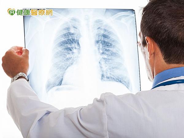 肺癌新一代化療藥物副作用少 醫囑性高提升療效