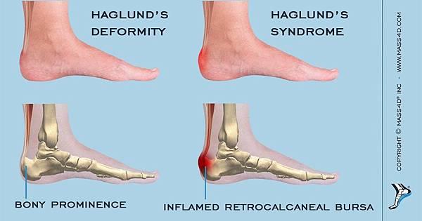 Haglunds_Syndrome.jpg