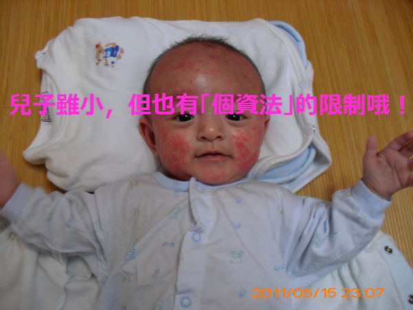 異位性皮膚炎