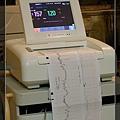 胎兒心跳與宮縮觀測器