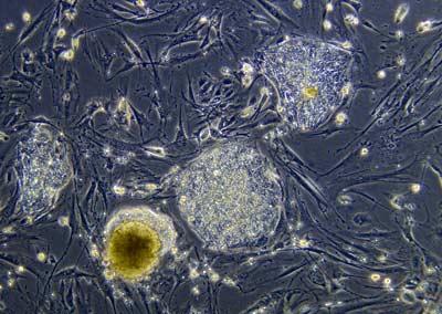 stem-cell-4.jpg