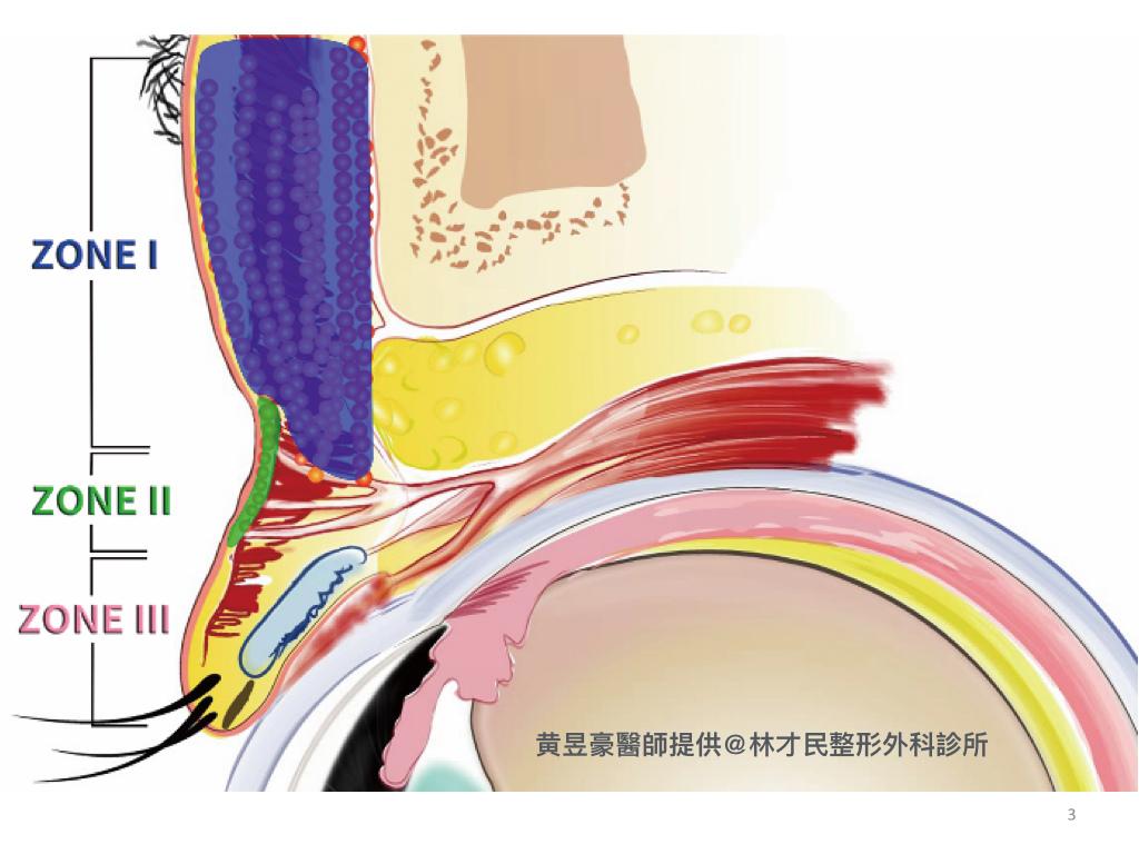 豪醫師-脂肪移植治療上眼凹陷.003.jpeg