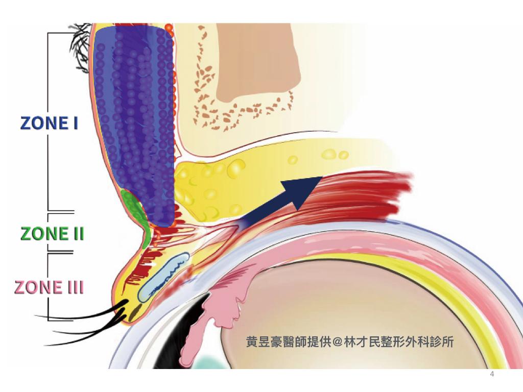 豪醫師-脂肪移植治療上眼凹陷.004.jpeg