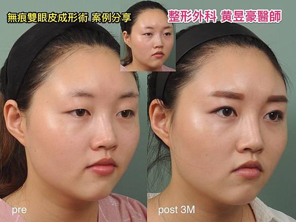 compare_廖啞如_004.jpg