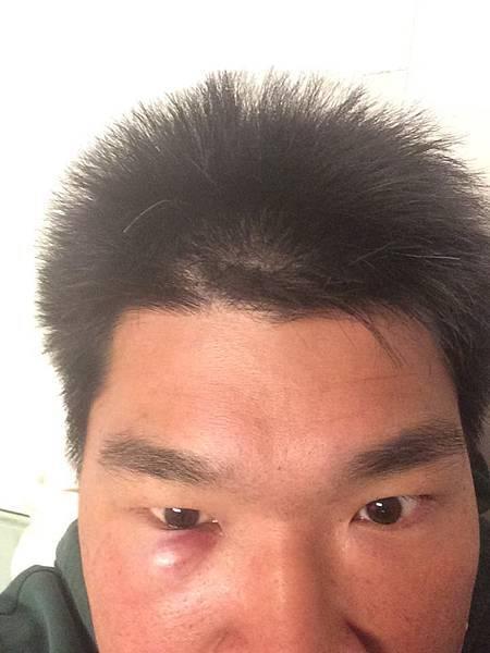 眼窩子受傷.jpg