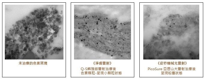 Picosure蜂巢皮秒雷射蜂巢瞬效透鏡淨膚雷射飛梭雷射除斑除毛孔 (4).jpg