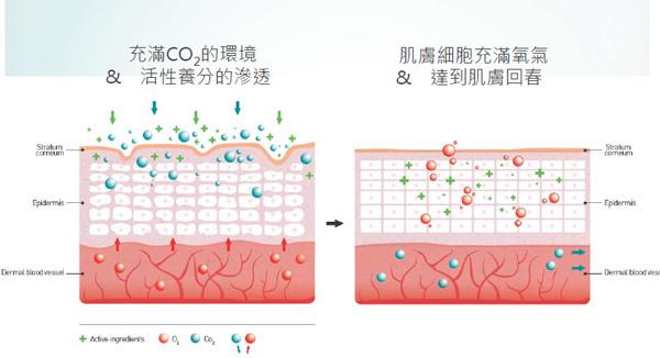 高雄席睿美醫 活氧泡泡電波 多少錢 價格 保濕補水鎖水保水改善肌膚乾燥細紋膠原蛋白生長 25歲怎麼保養 (4)