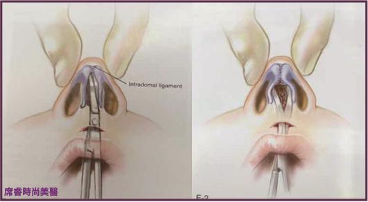 高雄席睿經口隆鼻玻尿酸隆鼻價格多少錢傷口腫脹程度 (1)