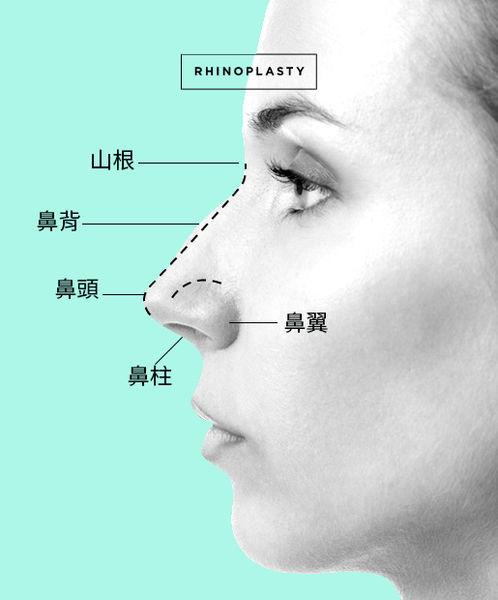 高雄席睿經口隆鼻玻尿酸隆鼻價格多少錢傷口腫脹程度 (3)