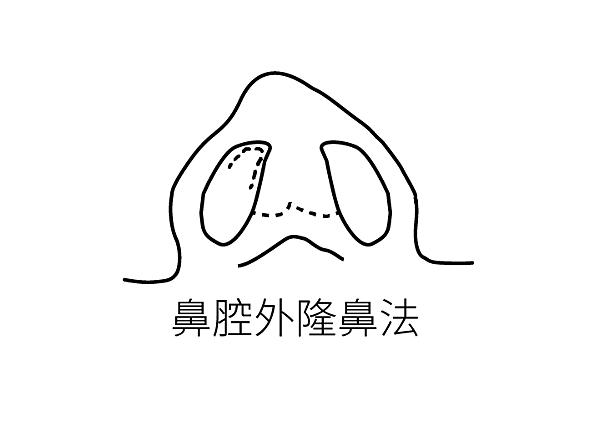 隆鼻手術經口式隆鼻玻尿酸隆鼻高雄席睿王文禾院長 (1)