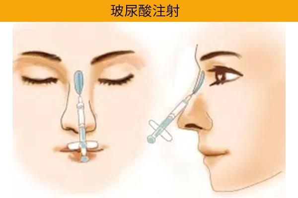 隆鼻手術經口式隆鼻玻尿酸隆鼻高雄席睿王文禾院長 (5)