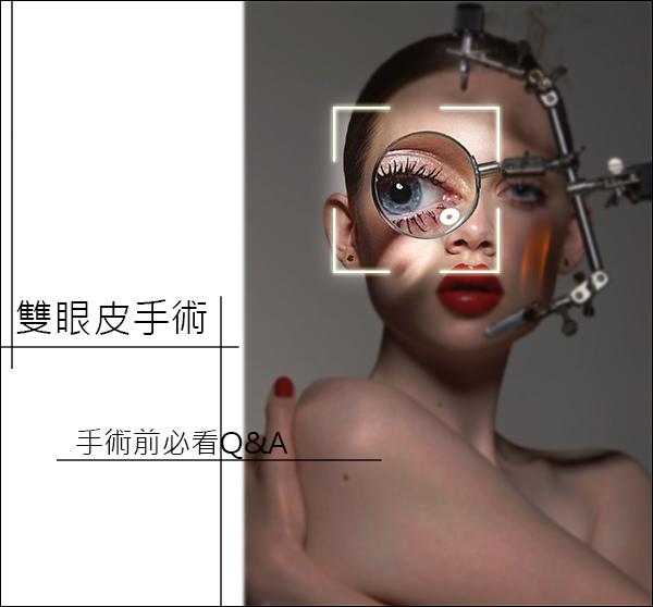割雙眼皮縫雙眼皮雙眼皮推薦醫師高雄席睿時尚美醫診所價格價錢王文禾評價