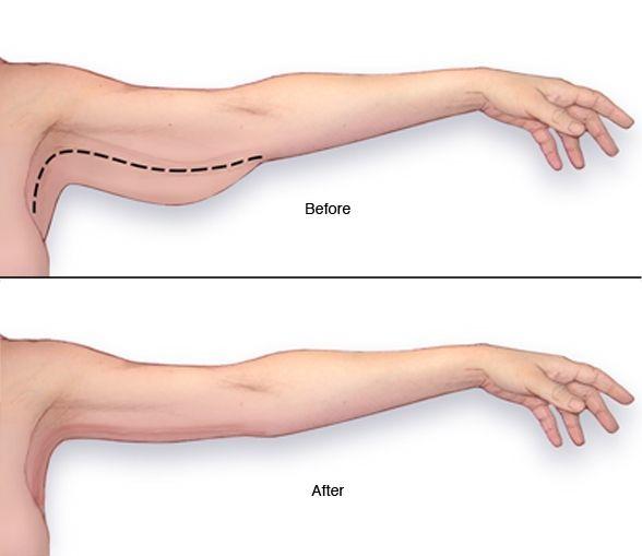 席睿時尚美醫整形外科診所瘦手臂Z波黃金脂雕抽脂超音波抽脂9