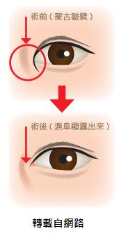 高雄雙眼皮手術推薦席睿時尚美醫整形外科診所王文禾院長縫雙眼皮割雙眼皮開眼頭釘書機雙眼皮手術高雄推薦網友案例分享 (1)