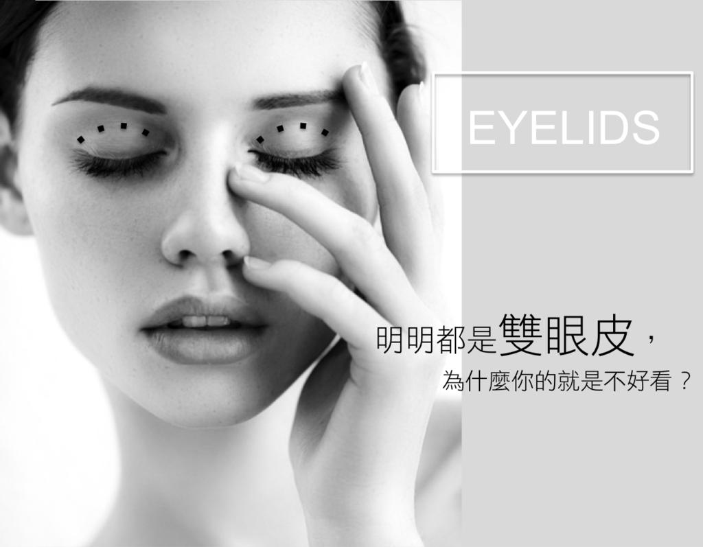 雙眼皮手術席睿時尚美醫縫雙眼皮割雙眼皮多少錢評價好嗎電話07-2010-098 (1)