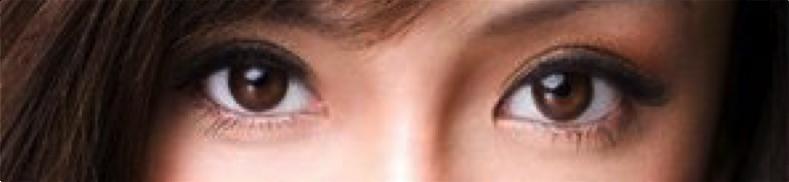 雙眼皮手術席睿時尚美醫縫雙眼皮割雙眼皮多少錢評價好嗎電話07-2010-098 (2)