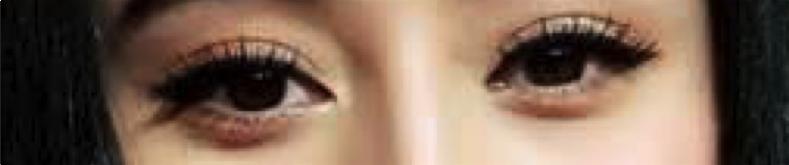 雙眼皮手術席睿時尚美醫縫雙眼皮割雙眼皮多少錢評價好嗎電話07-2010-098 (3)