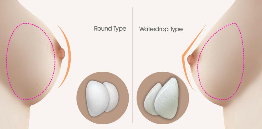 高雄隆乳手術席睿時尚美醫推薦多少果凍矽膠隆乳水滴型隆乳自體脂肪隆乳 (2)