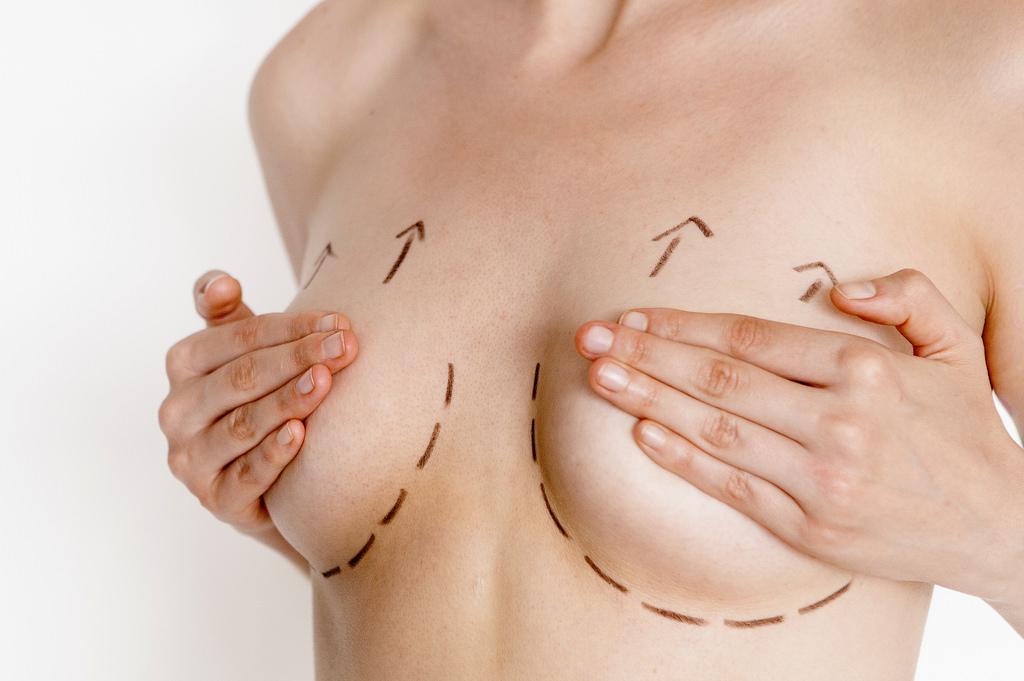高雄隆乳手術席睿時尚美醫推薦多少果凍矽膠隆乳水滴型隆乳自體脂肪隆乳 (3)