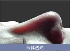 隆鼻手術高雄王文禾經口隆鼻隱痕隆鼻卡麥拉隆鼻韓式隆鼻自體耳軟骨隆鼻席睿時尚美醫推薦價格多少錢手術費 (4)