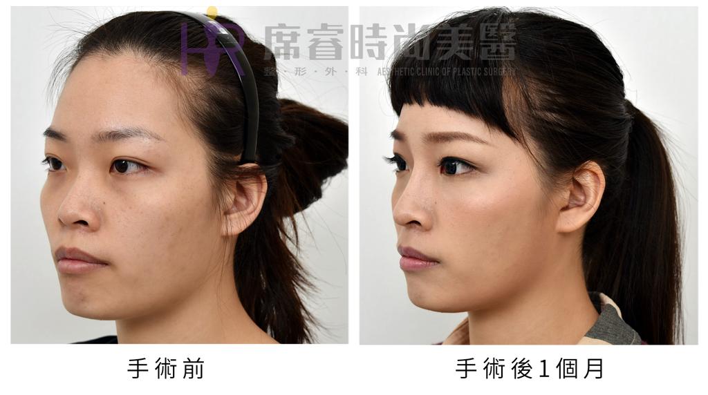 高雄席睿時尚美醫經口式隆鼻隱痕隆鼻案例照片推薦王文禾醫生隆鼻手術案例分享 (1)