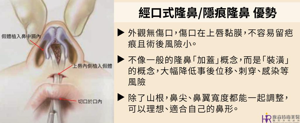 高雄席睿時尚美醫經口式隆鼻隱痕隆鼻案例照片推薦王文禾醫生隆鼻手術案例分享 (2)