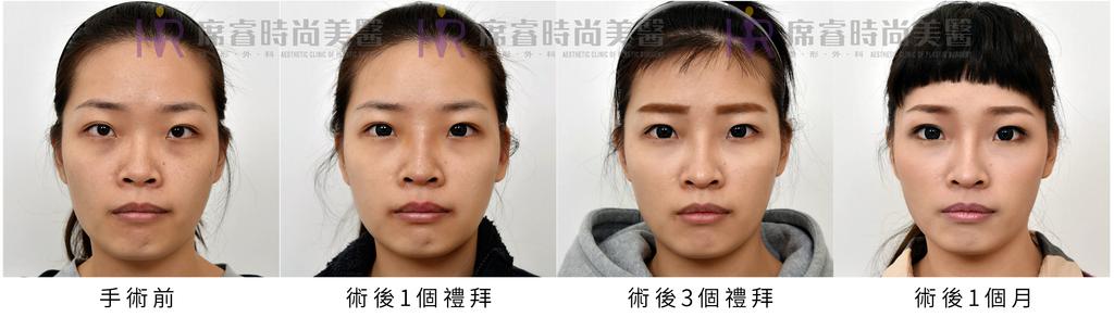 高雄席睿時尚美醫經口式隆鼻隱痕隆鼻案例照片推薦王文禾醫生隆鼻手術案例分享 (6)