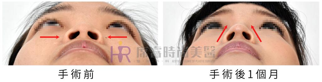 高雄席睿時尚美醫經口式隆鼻隱痕隆鼻案例照片推薦王文禾醫生隆鼻手術案例分享 (8)