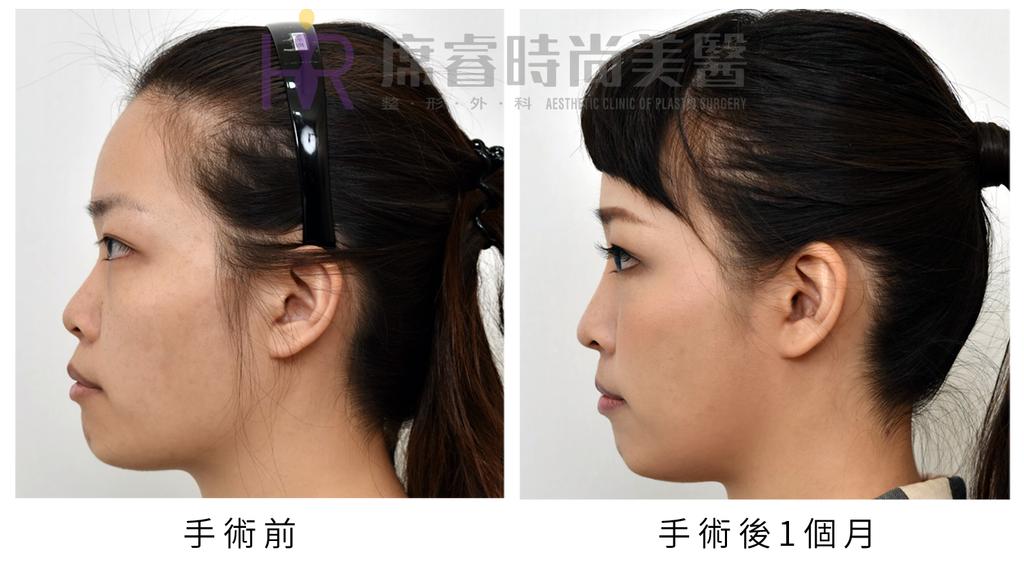高雄席睿時尚美醫經口式隆鼻隱痕隆鼻案例照片推薦王文禾醫生隆鼻手術案例分享 (9)