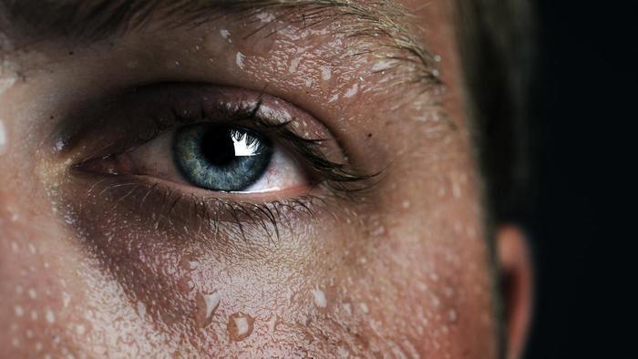 夏天做雙眼皮手術冬天做雙眼皮手術哪個比較好高雄席睿時尚美醫雙眼皮手術多少錢王文禾醫生好嗎評價推薦 (6)
