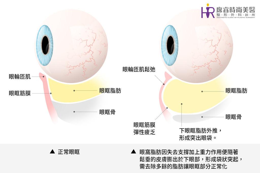 高雄眼袋手術席睿時尚美醫王文禾醫生院長推薦評價多少錢費用心得分享自體脂肪填補蘋果肌玻尿酸 (1)