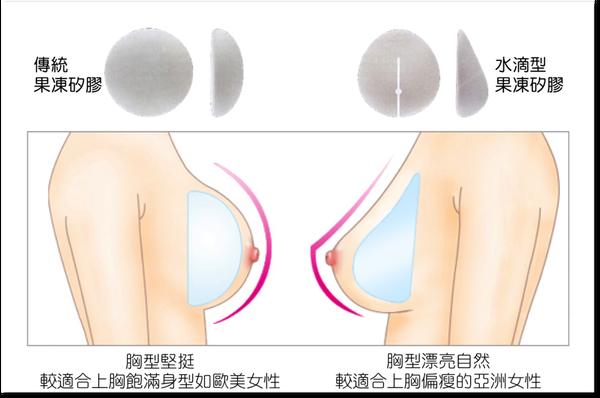 果凍矽膠隆乳高雄席睿時尚美醫王文禾醫生推薦費用水滴型隆乳蜜桃絨面 (1)