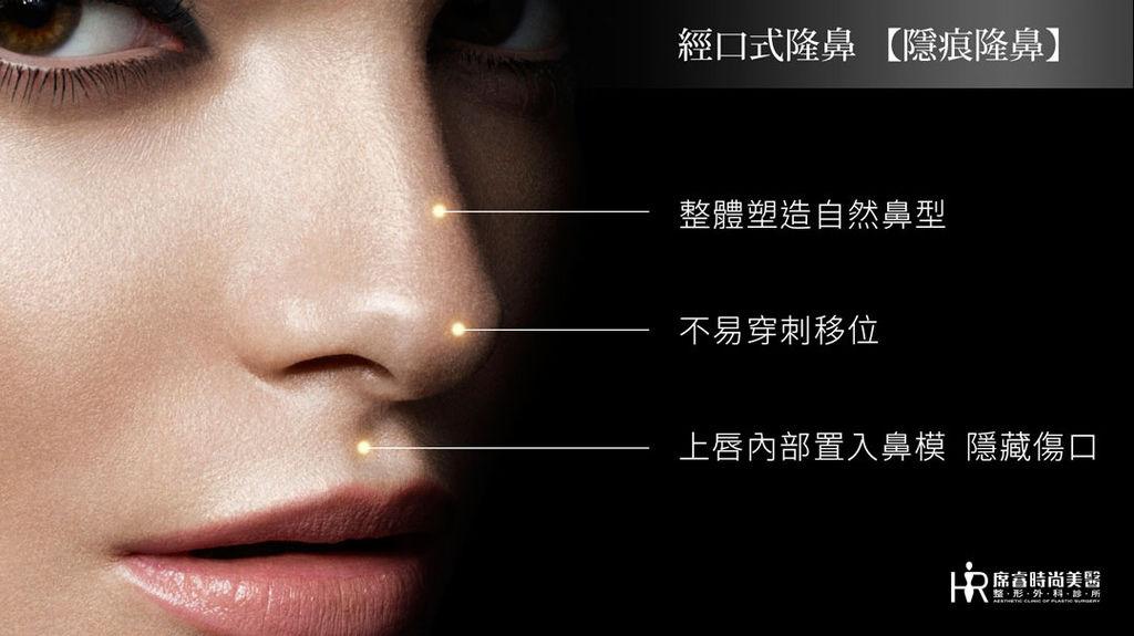 隆鼻自然高雄席睿時尚美醫經口式隆鼻隱痕隆鼻手術王文禾醫生價錢價格多少06