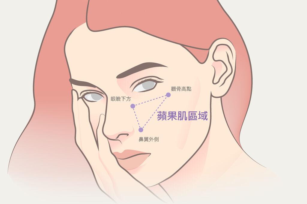 高雄醫美推薦席睿診所美醫自體脂肪抽脂蘋果肌臉頰淚溝下巴額頭法令紋02.jpg
