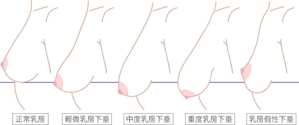 高雄醫美推薦席睿診所美醫自體脂肪抽脂隆乳胸部產後胸部下垂04.jpg
