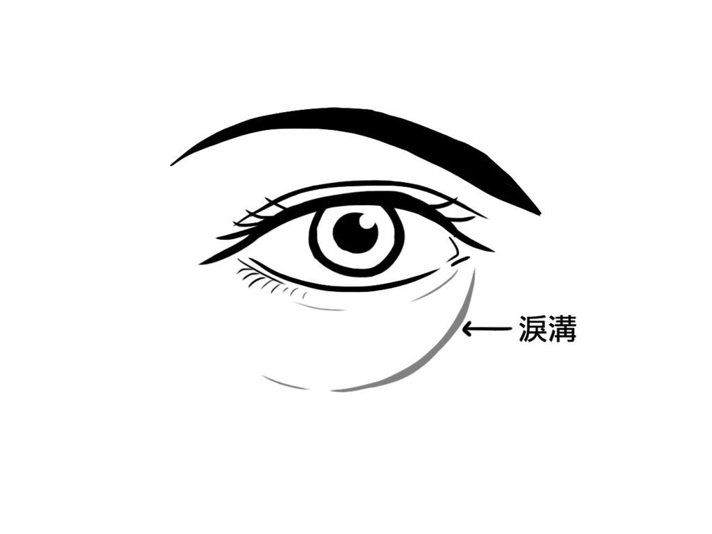 席睿診所高雄醫美美醫自體脂肪抽脂蘋果肌臉頰淚溝下巴額頭法令紋02.jpg