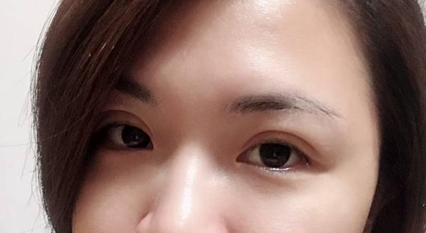 雙眼皮-6.jpg