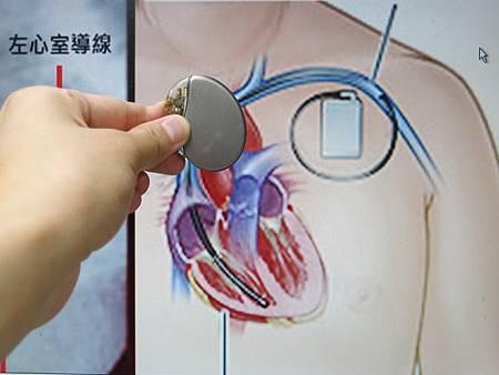 使用雙心室同步強心節律器減少心衰竭的症狀