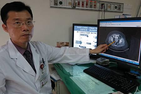 子宮內膜癌1