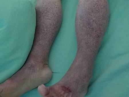 一夜之間出現紫斑老婦誤以為腳沒洗乾淨