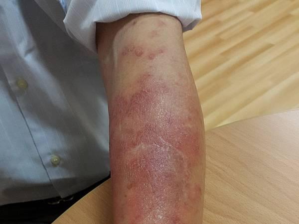 H中醫皮膚癢2.jpg