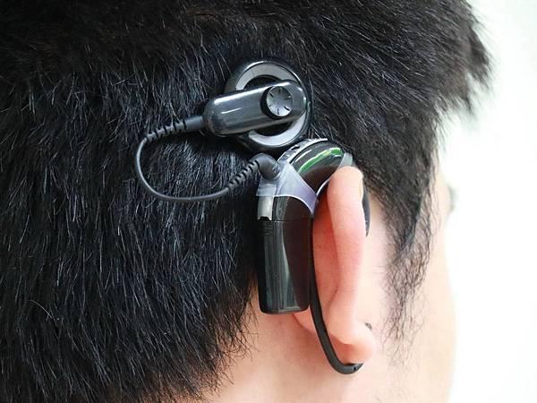 H人工耳蝸4.jpg