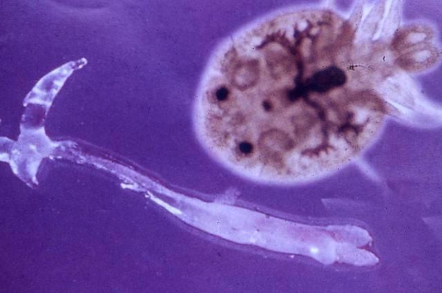 圖片1寄生蟲