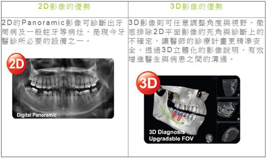 新竹3D植牙