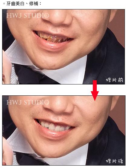 美白牙齒.修補