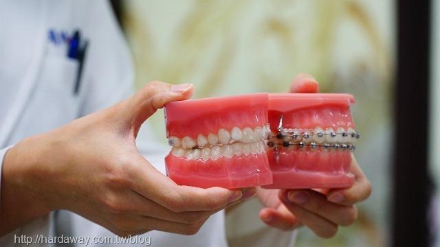 與隱適美隱形牙套