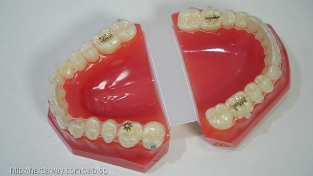 隱適美隱形牙套