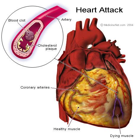 心臟1.jpg