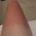 曬紅的大腿