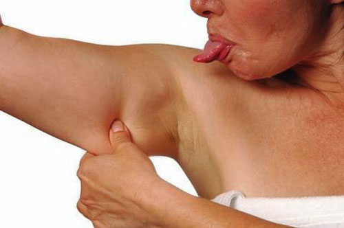 upper-arm-fat